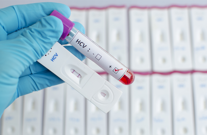 Photograph of gloved hand holding a blood vial and hepatitis C test cassette